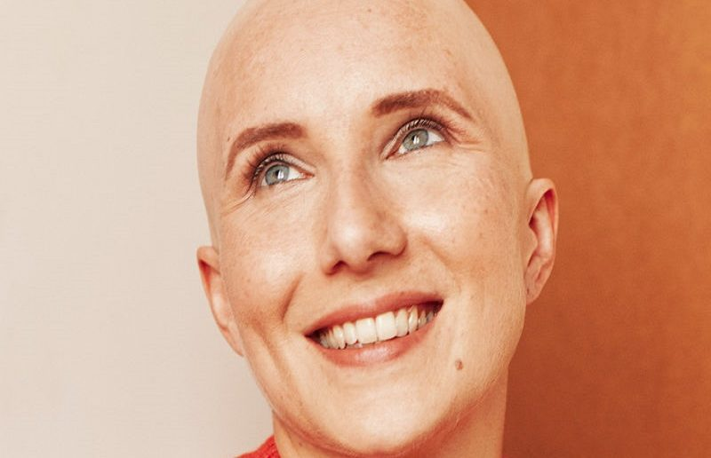 Hair Loss During Chemo Oncovia