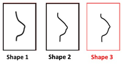 Shape 3 breast form - Amoena